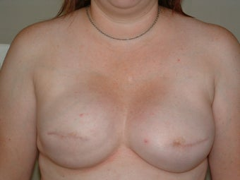 Breast Reconstruction after 735408