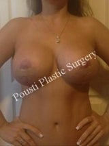 2 Stage Breast Procedure, Breast Implant Removal, Breast Lift, Revision Breast Surgery, Saline Overfilled Breast Augmentation after 1465152