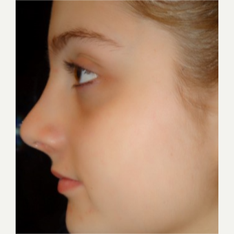 18-24 year old woman treated with Rhinoplasty after 3687045