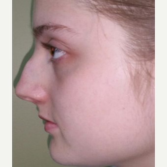 18-24 year old woman treated with Rhinoplasty before 3687045
