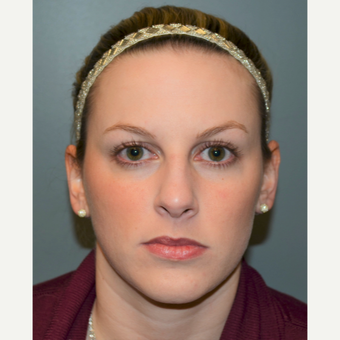 25-34 year old woman treated with Rhinoplasty before 3712261