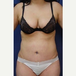 25-34 year old woman treated with Mini Tummy Tuck after 2045402