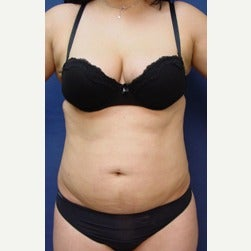 25-34 year old woman treated with Mini Tummy Tuck before 2045402