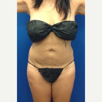 35-44 year old woman treated with Laser Liposuction Liposculpture after 2263710