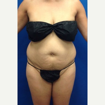 35-44 year old woman treated with Laser Liposuction Liposculpture before 2263710
