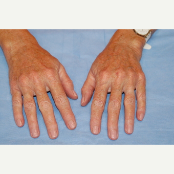 55-64 year old woman treated with Radiesse after 3169419