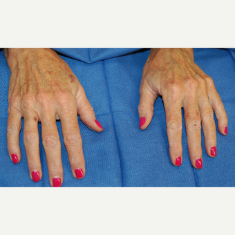 55-64 year old woman treated with Radiesse before 3169419