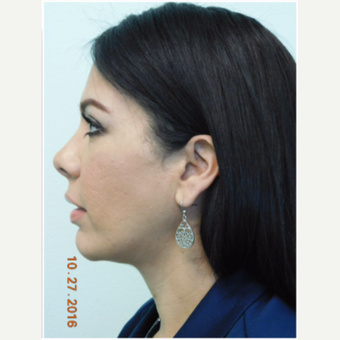 35-45 year old woman treated with Chin Implant and Neck Liposuction after 3670320