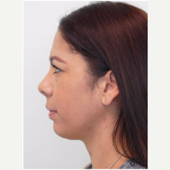 35-45 year old woman treated with Chin Implant and Neck Liposuction before 3670320