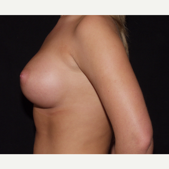 18-24 year old woman treated with Breast Implants after 3602789