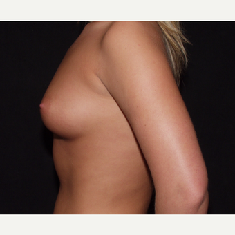18-24 year old woman treated with Breast Implants before 3602789