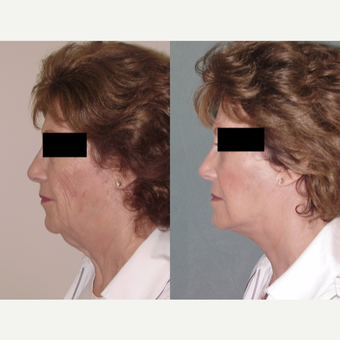 65-74 year old woman treated with Facelift after 3224163