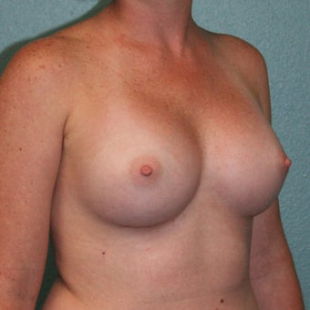 25-34 year old woman treated with Mentor Breast Implants after 2335541