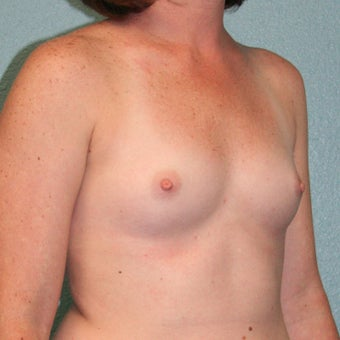 25-34 year old woman treated with Mentor Breast Implants before 2335541