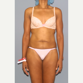 25-34 year old woman treated with Tummy Tuck before 3565710