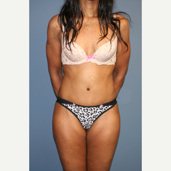 25-34 year old woman treated with Tummy Tuck after 3565710