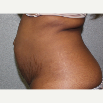 Tummy Tuck before 2881852