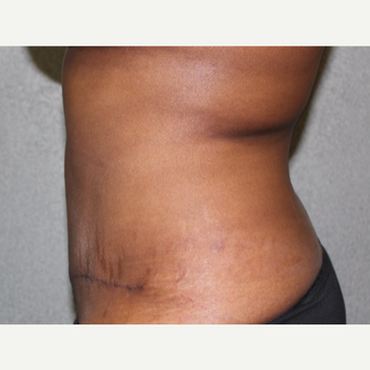 Tummy Tuck after 2881852