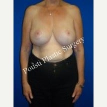 55-64 year old woman treated with Breast Augmentation after 1538609