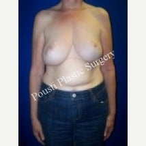 55-64 year old woman treated with Breast Augmentation before 1538609