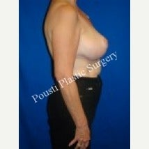 55-64 year old woman treated with Breast Augmentation 1538609