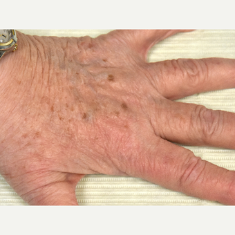 65-74 year old woman treated with IPL before 3295307
