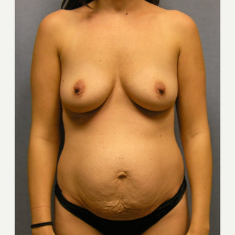 25-34 year old woman treated with Mommy Makeover before 3174650