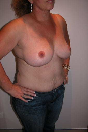 Breast Reduction  994007