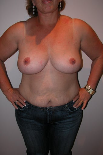 Breast Reduction  after 994007