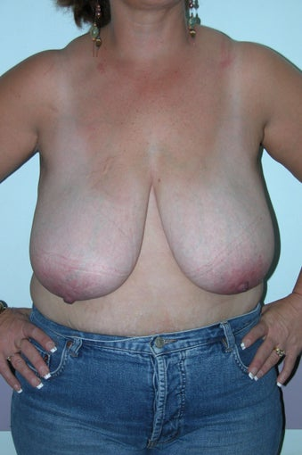 Breast Reduction  before 994007
