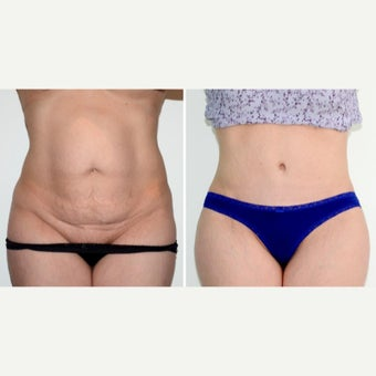 35-44 year old woman treated with full Tummy Tuck, muscle repair + lipo before 2008413