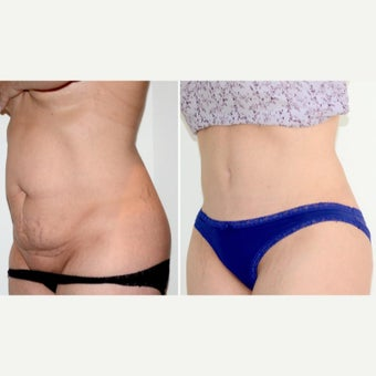 35-44 year old woman treated with full Tummy Tuck, muscle repair + lipo after 2008413