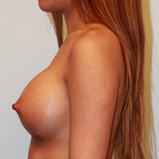 Breast Augmentation after 2146071