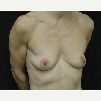 35-44 year old woman treated with Breast Implants before 3418230