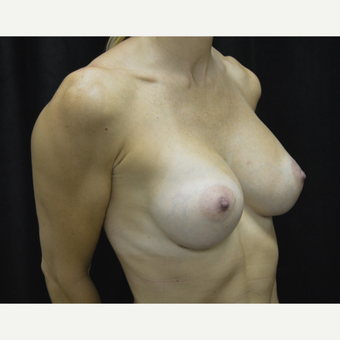 35-44 year old woman treated with Breast Implants after 3418230