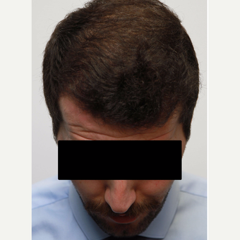 35-44 year old man treated with Organic Hair Transplant after 3172531