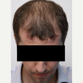 35-44 year old man treated with Organic Hair Transplant before 3172531