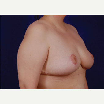 35-44 year old woman treated with Breast Reduction after 3439241