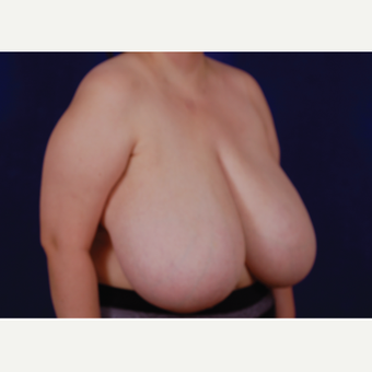 35-44 year old woman treated with Breast Reduction before 3439241