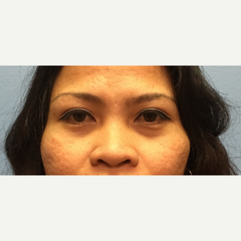 34 year old woman treated with Asian Rhinoplasty before 3036888