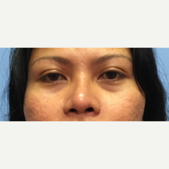 34 year old woman treated with Asian Rhinoplasty after 3036888