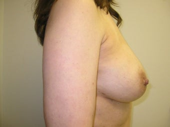 45-54 year old woman treated for Fat Transfer 1534459