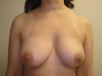 45-54 year old woman treated for Fat Transfer before 1534459