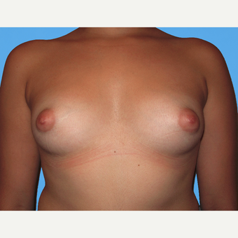 Breast Lift with Implants before 3748783