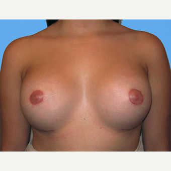 Breast Lift with Implants after 3748783