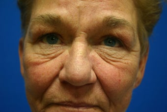 Revision facelift with lower lid blepharoplasty and lateral canthopexy before 551194