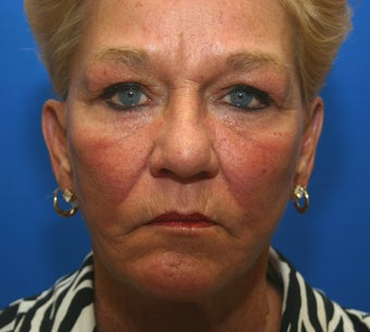 Revision facelift with lower lid blepharoplasty and lateral canthopexy after 551194