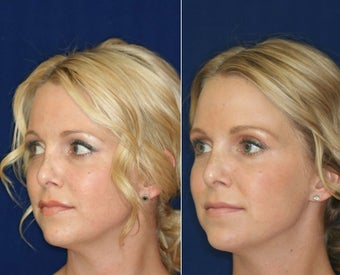 Non-surgical Rhinoplasty before 1224784