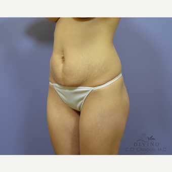 25-34 year old woman treated with Tummy Tuck before 3415667