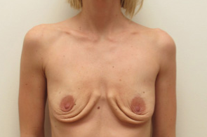 35-44 year old woman treated with Breast Implant Removal after 1946297
